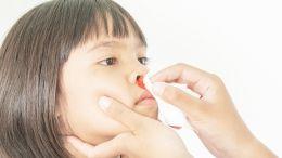 Nasenbluten stoppen: Zehn natürliche Helfer