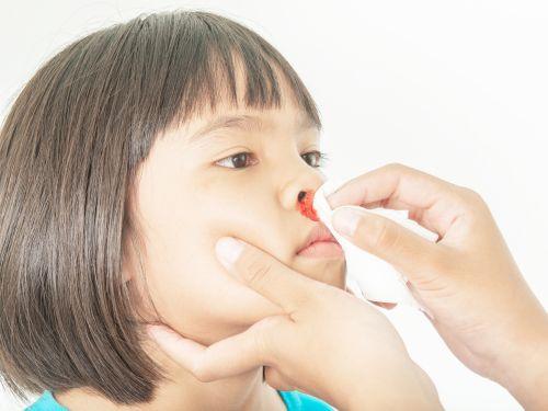 Nasenbluten ist meist harmlos
