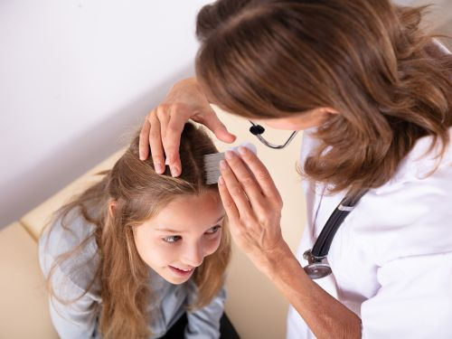 Anzeichen für Läuse: Rote Stellen auf der Kopfhaut